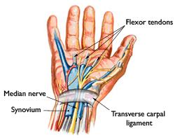 Carpal Tunnel Diagram | Maurer Law Firm