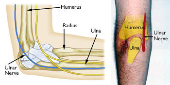 Ulnar Nerve Diagram | Poughkeepsie Injury Attorney