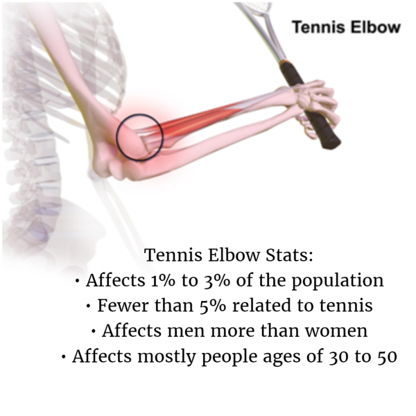 tennis elbow stats Fishkill new york attorney